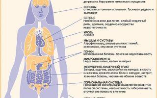 Булимия: это что за болезнь, симптомы, последствия и лечение заболевания, советы врачей и отзывы пациентов