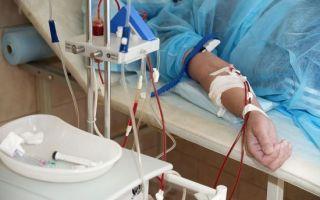 Болезнь бехчета: что это такое, симптомы и признаки развития заболевания, способы лечения и развитие осложнений, советы специалистов