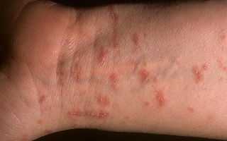 Стригущий лишай: симптомы и лечение недуга народными средствами