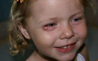 Ячмень на глазу: причины и эффективные методы лечения