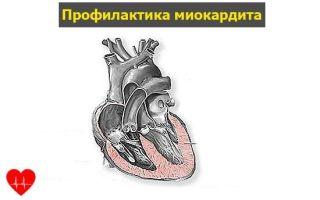 Миокардит сердца: причины заболевания, характерные симптомы и методы лечения