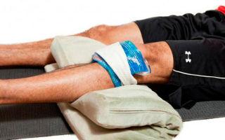 Как эффективно лечить бурсит коленного сустава: народные рецепты и медикаментозная терапия, показания для проведения операции и возможные последствия