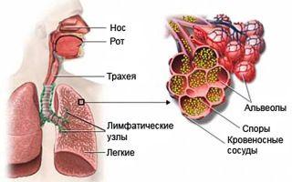Аспергиллез: основные симптомы у человека, методы диагностики и лечения заболевания, группы риска