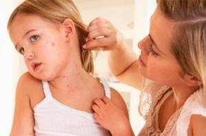 Чесотка: причины, симптомы и методы домашнего лечения