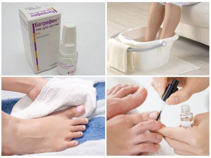 Микозан: инструкция по применению от грибка ногтей, показания и противопоказания