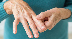 Как лечить артрит, симптомы, диета и профилактика