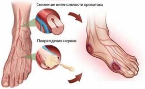 Трофические язвы:причины, симптомы, внешний вид, лечение