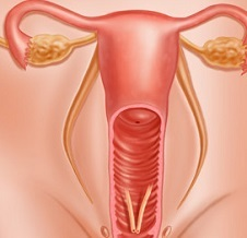 Лейкоплакия шейки матки: причины развития и разновидности заболевания, клинические проявления, методы исследования и лечения