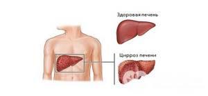 Калькулезный холецистит: причины заболевания, характерные симптомы и способы лечения