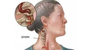 Синдром позвоночной артерии: природа появления, сопутствующие симптомы, способы лечения и профилактика