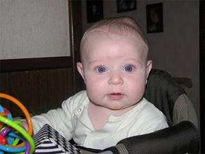 Кефалогематома на голове у новорожденного: причины появления, симптомы и диагностика, методы лечения