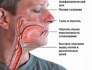 Как проявляется аллергия на алкоголь: признаки и причины непереносимости спиртного, опасности и последствия для организма
