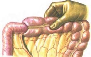 Заворот кишок у взрослых: причины возникновения и классификация патологии, методы диагностики и оптимальные варианты лечения, основные принципы реабилитации и профилактики