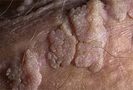 Как лечить остроконечные кондиломы у женщин: причины появления, основные признаки, способы лечения и профилактические меры