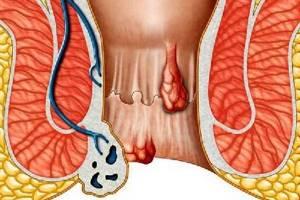 Как выглядит внутренний геморрой: причины и признаки заболевания, схемы лечения у мужчин и женщин, популярные препараты