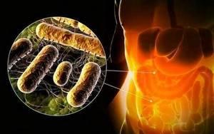 Признаки сальмонеллеза: классификация клинических форм заболевания, способы заражения и методы диагностирования инфекции, лечение заболевания у взрослых и детей, возможные осложнения