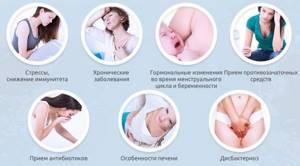 Кандидоз у женщин: причины и признаки недуга, возможные осложнения, способы лечения и профилактика