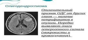 Глиома головного мозга: симптомы и признаки заболевания, методы лечения и вероятность операции, советы врачей