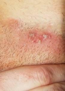 Как лечить герпес в интимной зоне у женщин: причины и симптомы заражения, разновидности инфекции и фото высыпаний, возможные осложнения и правила профилактики