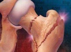 Ахондроплазия у детей: признаки и симптомы наследственного заболевания, стандарты лечения и классификации болезни, комментарии специалистов