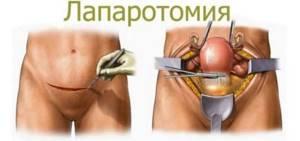 Перитонит: причины развития, клинические признаки и симптомы в зависимости от стадии заболевания, лечение воспаления и прогноз на выздоровление