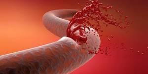 Гемофилия: формы заболевания и факторы риска, современные способы лечения и обзор лекарственных средств, комментарии специалистов