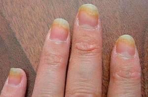 Грибок ногтей на руках: первые признаки и симптомы развития заболевания, современная диагностика и лечение болезни