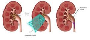 Симптомы камней в почках у женщин и мужчин: провоцирующие факторы и причины формирования конкрементов, клинические признаки и варианты лечения патологии, возможные осложнения