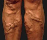 Варикозное расширение вен на ногах: причины появления и первые признаки патологии, разновидности заболевания и стадии развития, методы диагностики и варианты лечения, возможные осложнения
