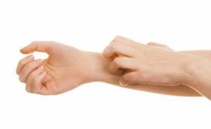 Дерматит: фото, лечение и симптомы, причины возникновения
