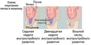 Водянка яичка у ребенка: причины появления, классификация и симптомы заболевания, методы лечения и диагностики