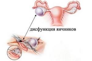 Дисфункция яичников: что это такое, симтпомы и лечение патологии, диагностика заболевания и планирование беременности