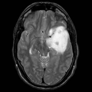 Астроцитома головного мозга: причины заболевания и его лечение, прогноз для жизни, методы профилактики