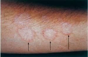Микроспория у человека: факторы риска заражения, стадии развития и клинические проявления, методы лечения
