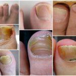Как выглядит грибок ногтей на ногах: основная симптоматика, формы и стадии заболевания, народные методы и медикаментозное лечение
