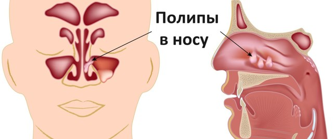 Полипы в носу: причины возникновения, сопутствующие симптомы, хирургические и народные способы лечения