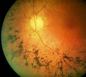 Абиотрофия сетчатки глаза: классификация и причины развития патологии, клиническая картина и методы диагностики, способы лечения и возможные осложнения, прогноз на выздоровление