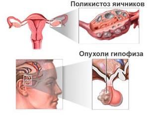 Аменорея: классификация заболевания, причины и симптомы проблемы, лечение и профилактические действия
