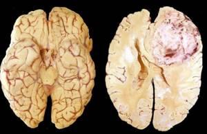 Менингиома головного мозга: классификация и локализация опухоли, клинические проявления, диагностика и способы лечения