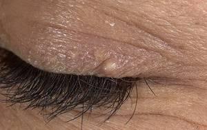 Милиумы на лице: причины появления, характерные признаки, способы лечения и советы по профилактике