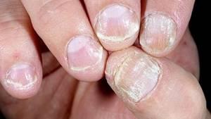 Лечение псориаза ногтей медикаментозными и народными средствами