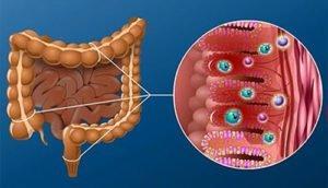 Дисбактериоз кишечника: классификация заболевания и методы диагностики, причины дисбаланса микрофлоры, симптомы и схема лечения патологии у взрослых лекарственными препаратами и народными средствами