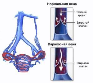 Варикозное расширение вен малого таза: симптоматика и диагностика заболевания, особенности и лечение болезни, профилактика рецидивов