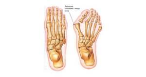 Как избавиться от вальгусной деформации большого пальца стопы: причины образования и современные средства лечения