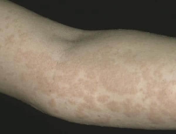 Почему возникает аллергическая крапивница: симптомы и признаки заболевания, оказание первой помощи пациенту и последующее лечение