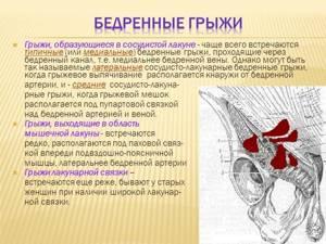 Как проявляется бедренная грыжа у женщин и мужчин: причины развития и разновидности патологии, характерные симптомы, методы лечения и профилактика заболевания