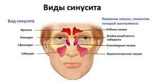 Синусит у взрослых: разновидности и формы заболевания, основные причины возникновения и характерные симптомы патологии, принцип лечения в домашних условиях лекарственными препаратами и народными средствами, возможные осложнения