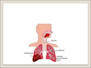 Симптомы и лечение пневмонии у детей и взрослых