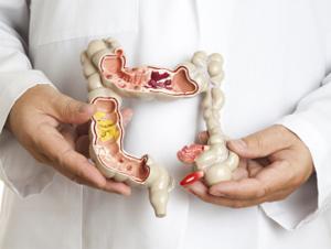 Симптомы болезни Крона у взрослых: причины и классификация заболевания, прогноз жизни, инвалидность и возможность ремиссии