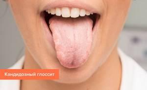 Глоссит: виды и симптомы заболевания, эффективные методы лечения, советы специалистов и отзывы пациентов